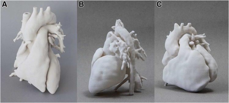 Model serca ludzkiego - druk 3D